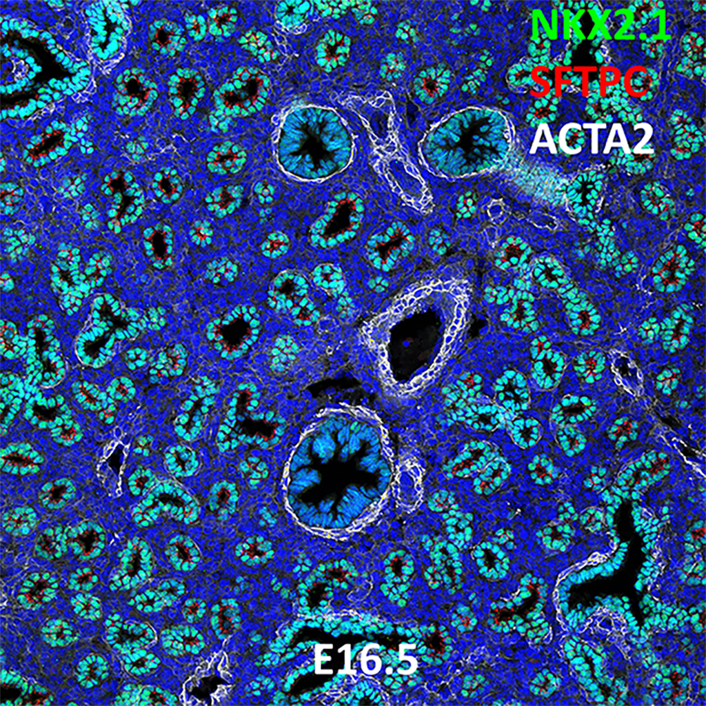 E16.5 Confocal Imaging Showing Protein Expression of Nkx2.1, Sftpc, and Acta2 Genes