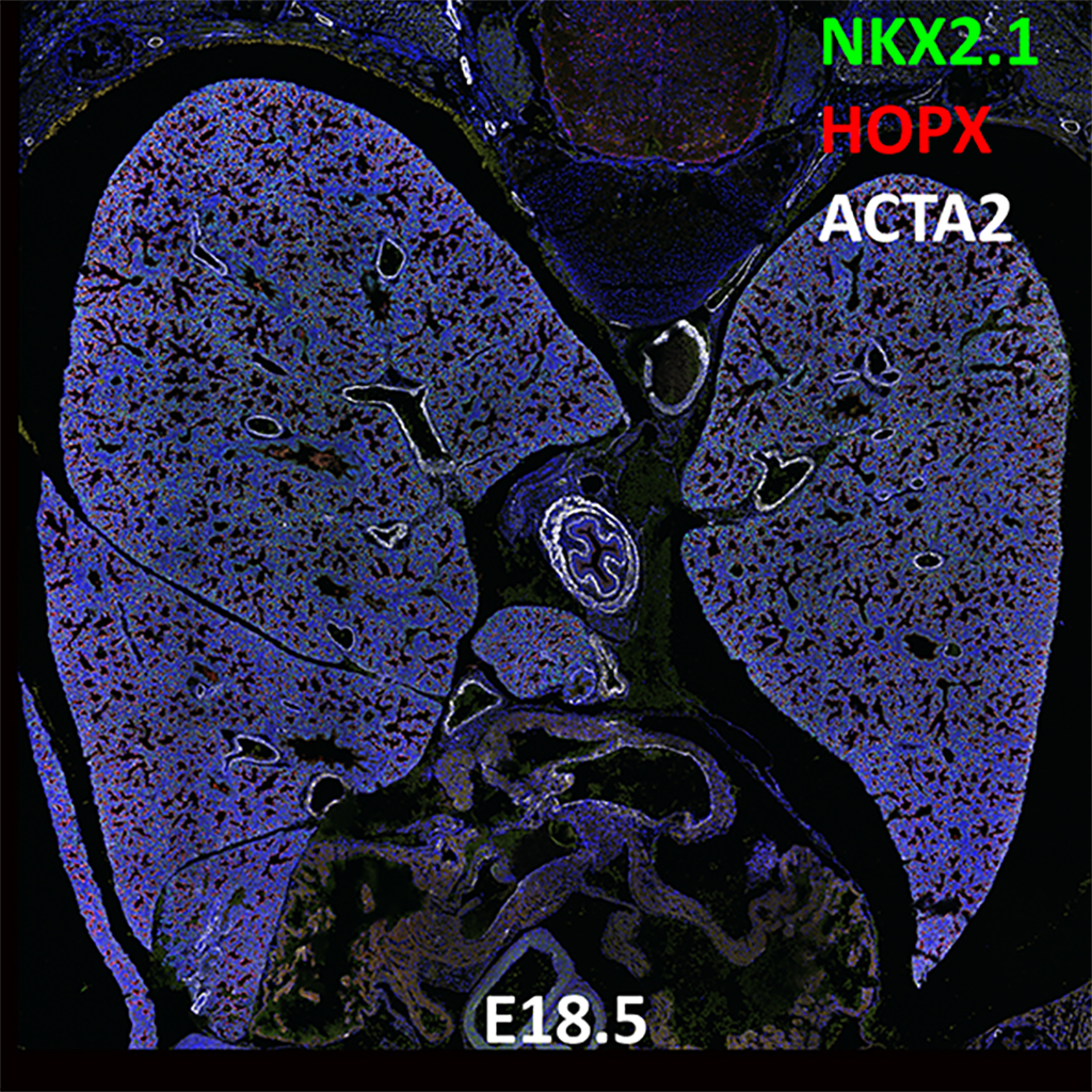 E18.5 Confocal Imaging Showing Protein Expression of Nkx2.1, Hopx, and Acta2 Genes