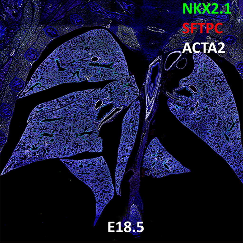 E18.5 Confocal Imaging Showing Protein Expression of Nkx2.1, Sftpc, and Acta2 Genes