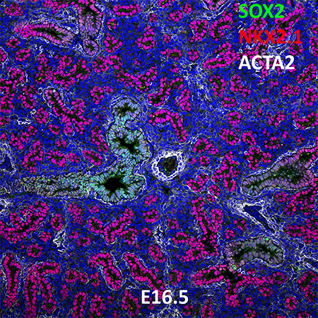 E16.5 C57BL6 SOX2, NKX2.1, and ACTA2 Confocal Imaging