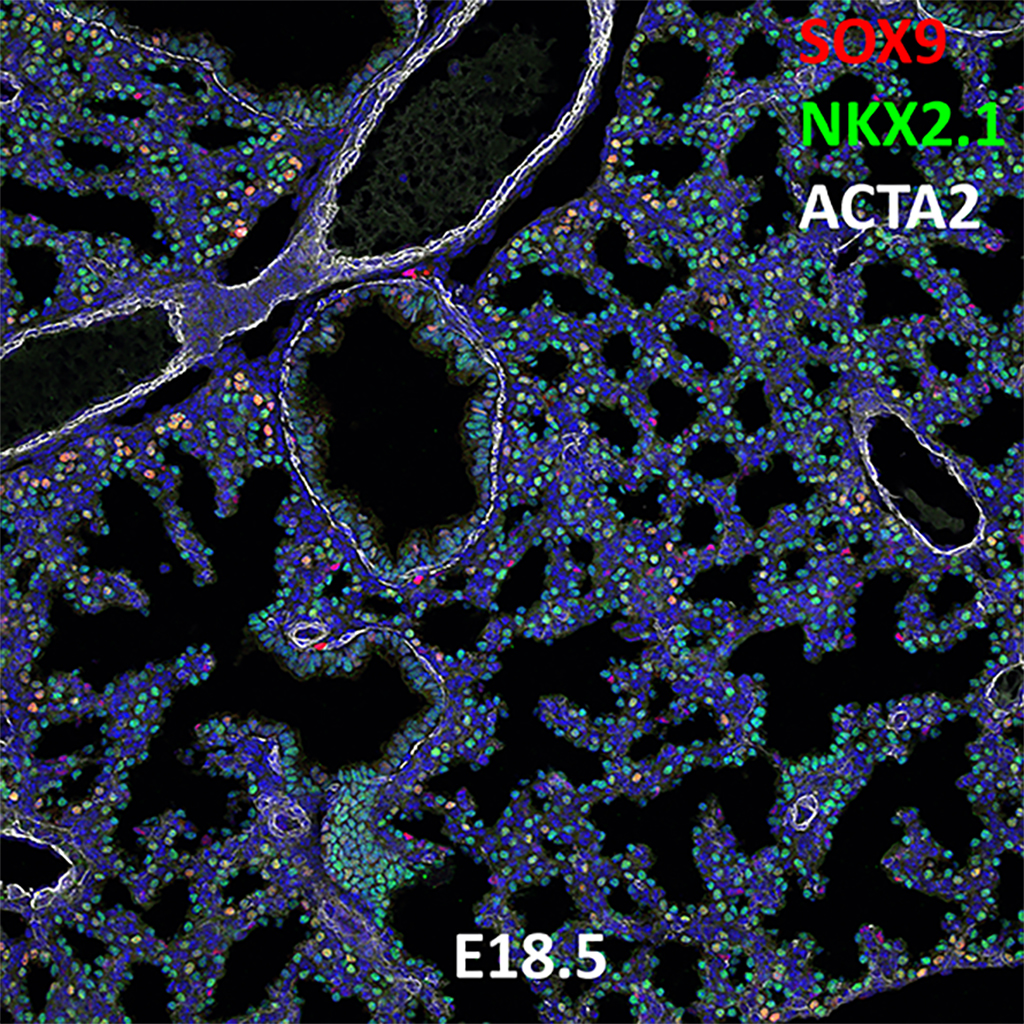 E18.5 Confocal Imaging Showing Protein Expression of Sox9, Nkx2.1, and Acta2 Genes