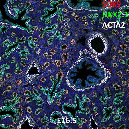 E16.5 C57BL6 SOX9, NKX2.1, and ACTA2 Confocal Imaging