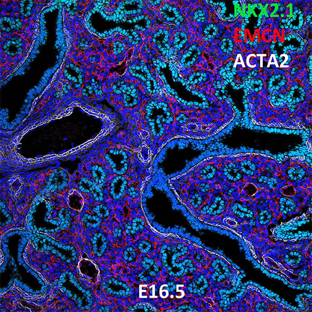 E16.5 Confocal Imaging Showing Protein Expression of Nkx2.1, Emcn, and Acta2 Genes