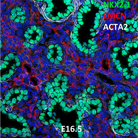 E16.5 C57BL6 NKX2.1, EMCN, and ACTA2 Confocal Imaging