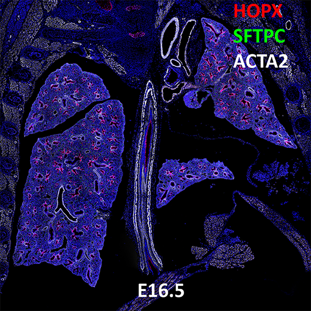 E16.5 Confocal Imaging Showing Protein Expression of Hopx, Sftpc, and Acta2 Genes