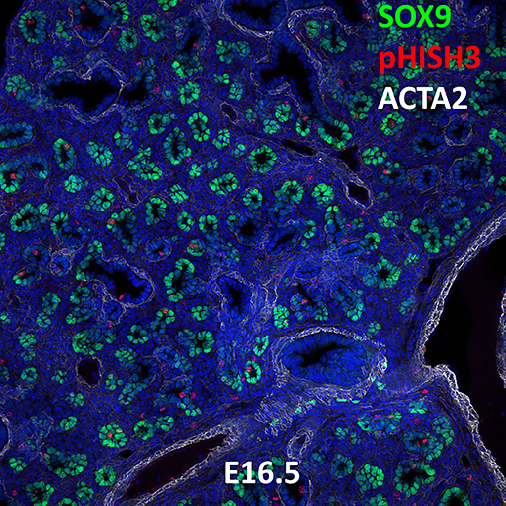 E16.5 Confocal Imaging Showing Protein Expression of Sox9, pHisH3, and Acta2 Genes