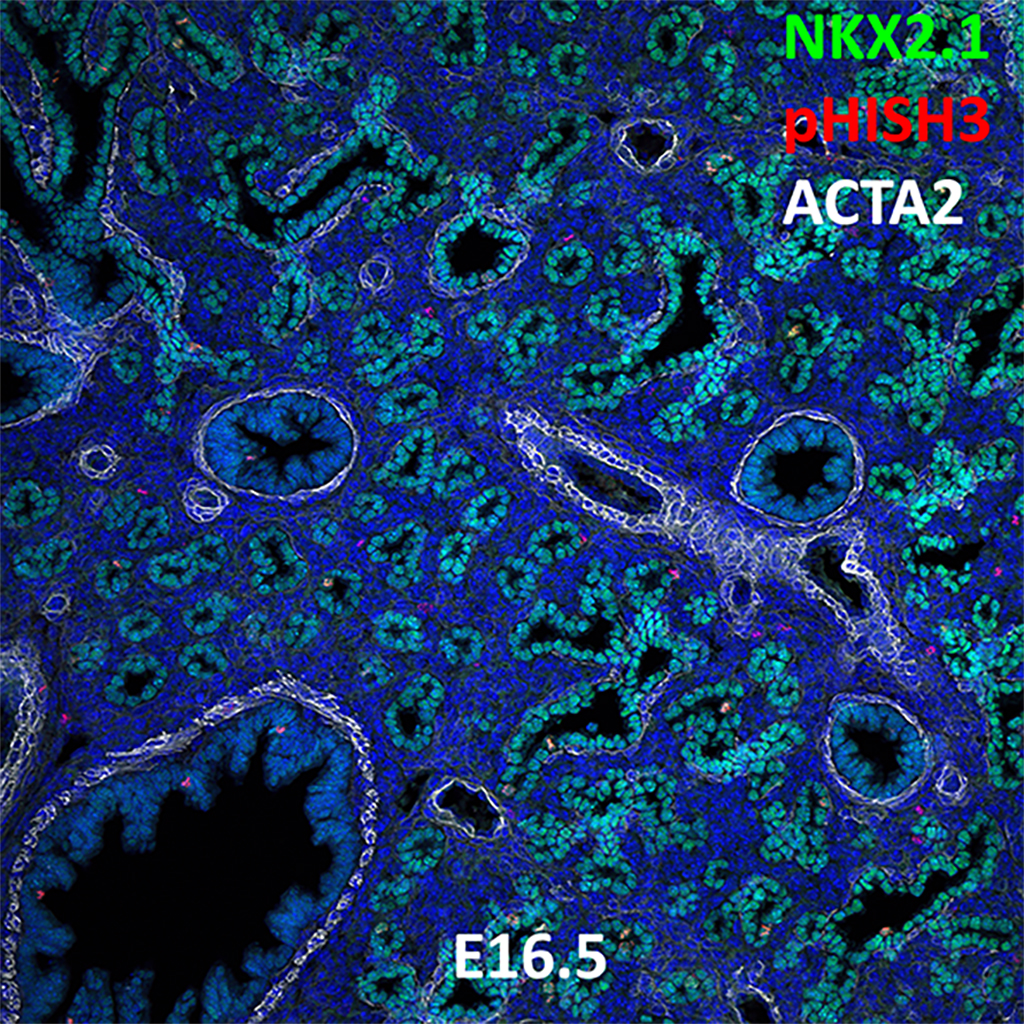 E16.5 Confocal Imaging Showing Protein Expression of Nkx2.1, pHisH3, and Acta2 Genes