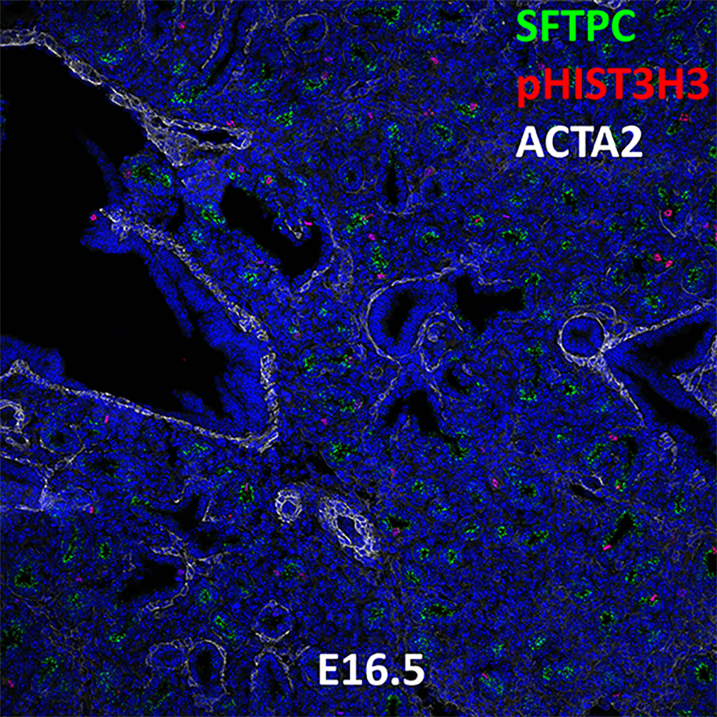 E16.5 Confocal Imaging Showing Protein Expression of Sftpc, pHisH3, and Acta2 Genes