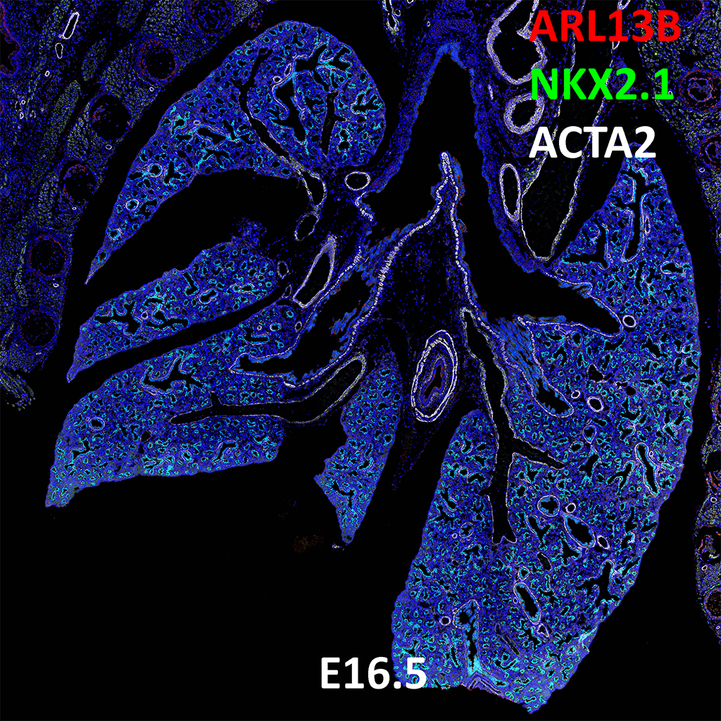 E16.5 Confocal Imaging Showing Protein Expression of Arl13b, Nkx2.1, and Acta2 Genes