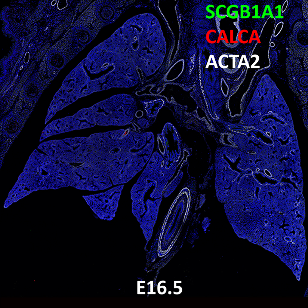 E16.5 Immunofluorescence and Confocal Imaging Showing Expression of CALCA, SCGB1A1, and ACTA2