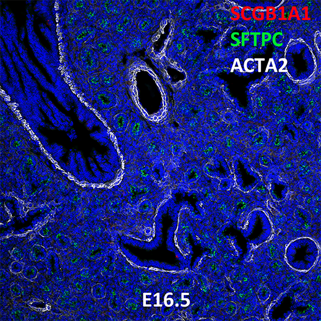 E16.5 Immunofluorescence and Confocal Imaging Showing  Expression of SCGB1A1, SFTPC and ACTA2