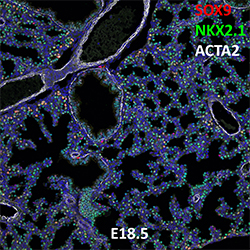 E18.5 C57BL6 SOX9, NKX2.1, and ACTA2 Confocal Imaging
