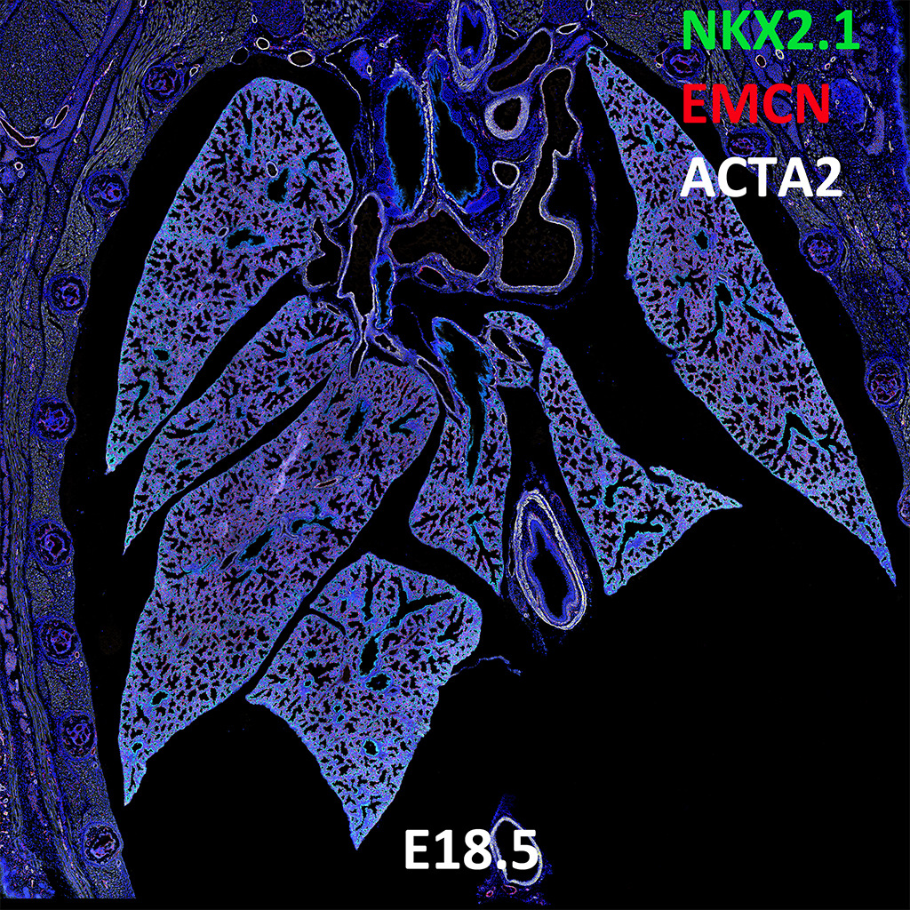 E18.5 Confocal Imaging Showing Protein Expression of Nkx2.1, Emcn, and Acta2 Genes