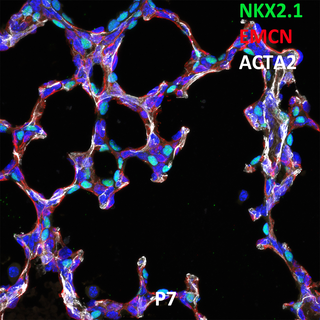 Post Natal Day 7 Confocal Imaging Showing Protein Expression of Nkx2.1, Emcn, and Acta2 Genes