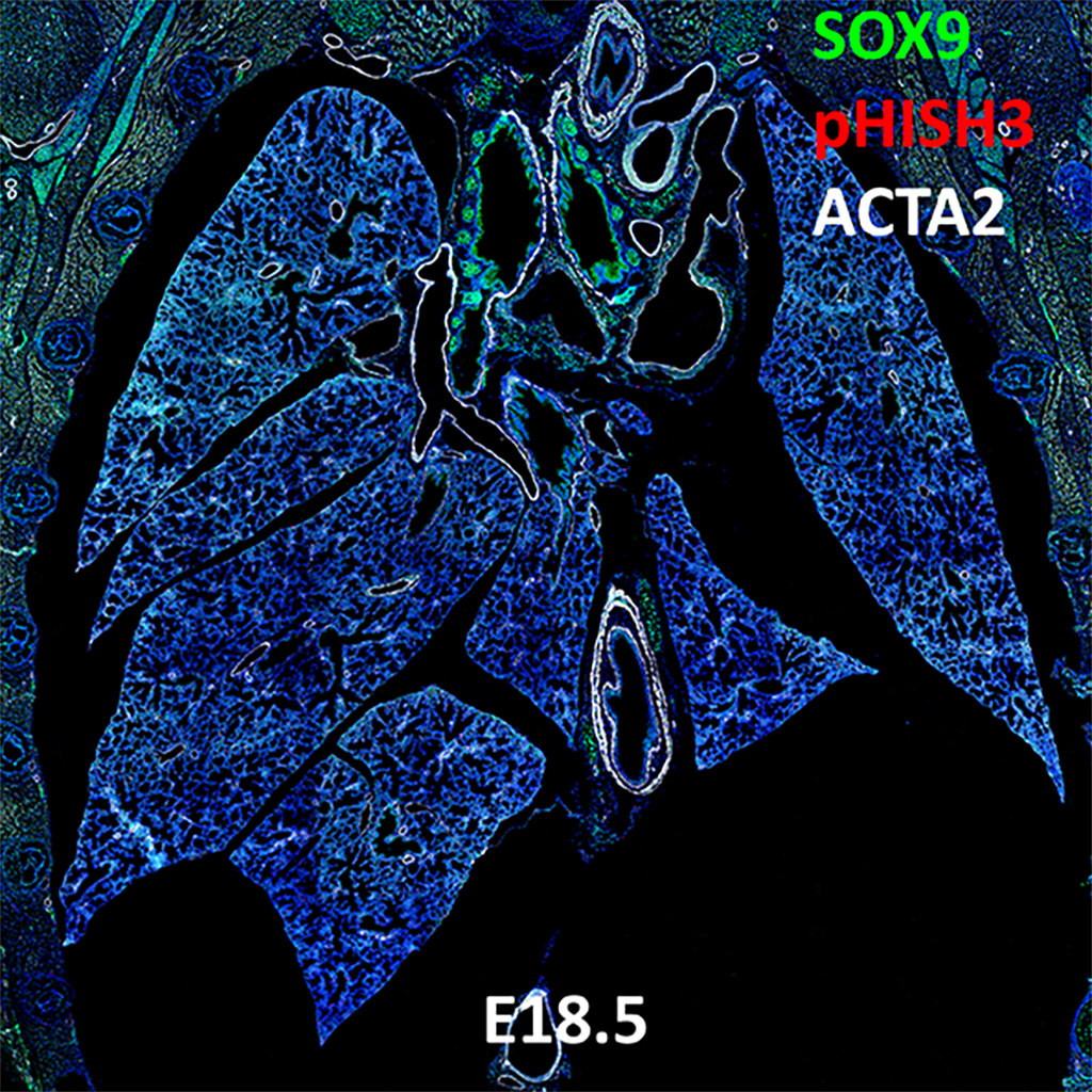 E18.5 Confocal Imaging Showing Protein Expression of Sox9, pHisH3, and Acta2 Genes