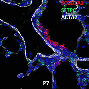 Post Natal Day 7 C57BL6 SCGB1A1, SFTPC, and ACTA2 Confocal Imaging