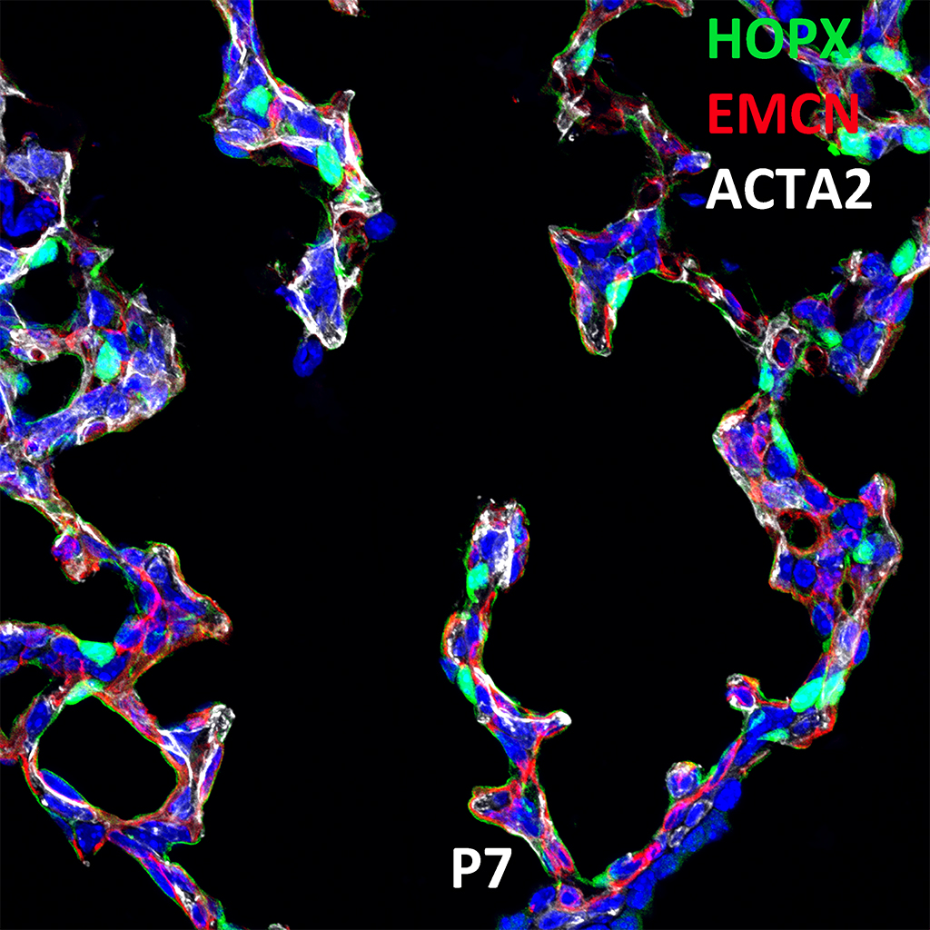 Post Natal Day 7 Confocal Imaging Showing Protein Expression of Hopx, Emcn, and Acta2 Genes