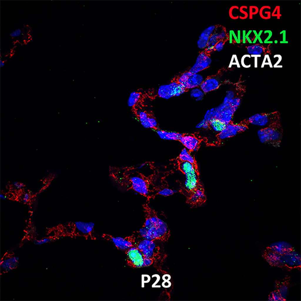 Post Natal Day 28 Confocal Imaging Showing Protein Expression of Cspg4, Nkx2.1, and Acta2 Genes