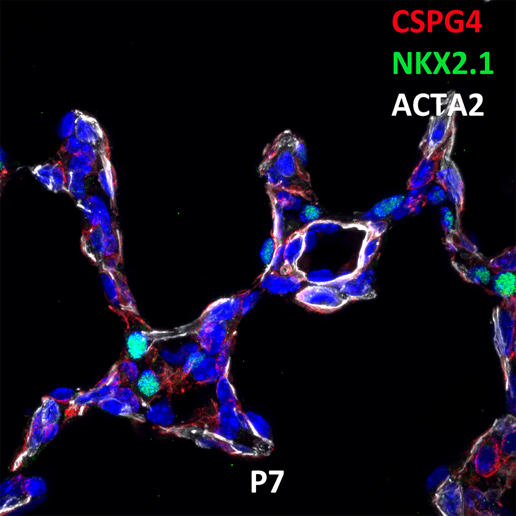 Post Natal Day 7 Confocal Imaging Showing Protein Expression of Cspg4, NKX2.1, and Acta2 Genes