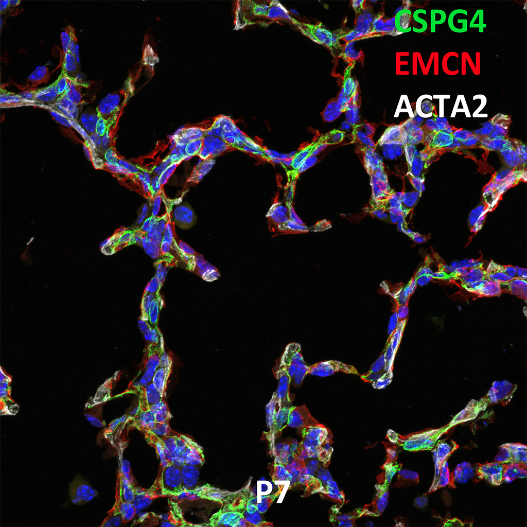 Post Natal Day 7 Confocal Imaging Showing Protein Expression of Cspg4, Emcn, and Acta2 Genes