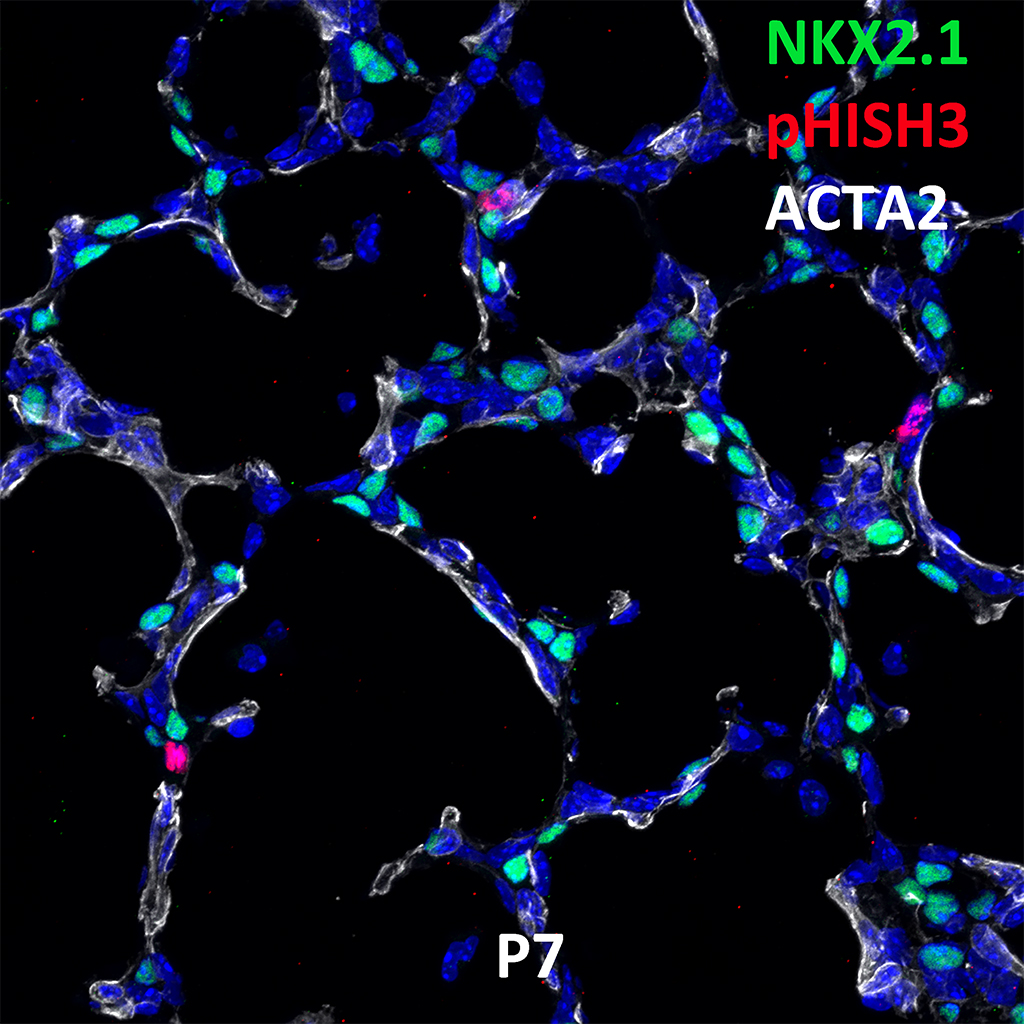 Post Natal Day 7 Immunofluorescence and Confocal Imaging Showing  Expression of NKX2.1, pHISH3, and ACTA2 Genes
