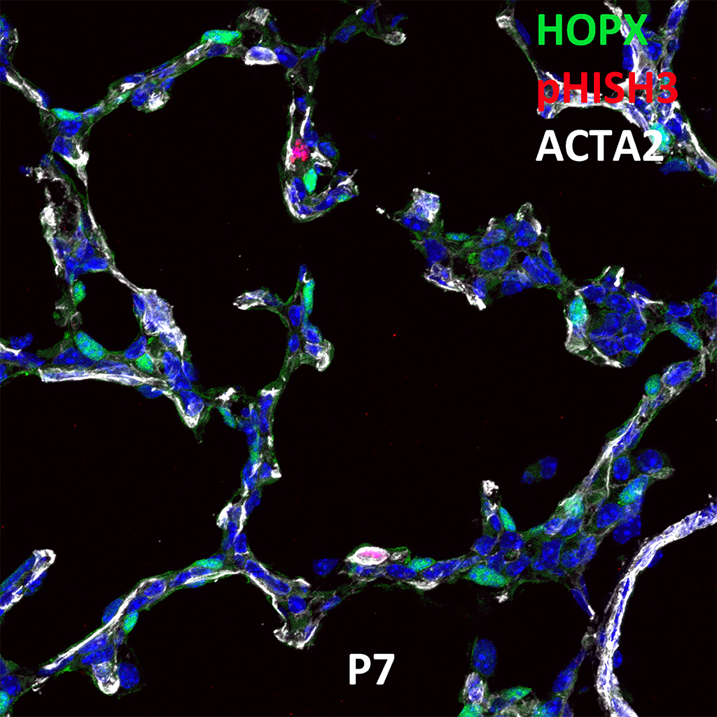 Post Natal Day 7 Immunofluorescence and Confocal Imaging Showing  Expression of HOPX, pHISH3, and ACTA2 Genes