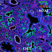 E16.5 C57BL6 HOPX, EMCN, and ACTA2 Confocal Imaging