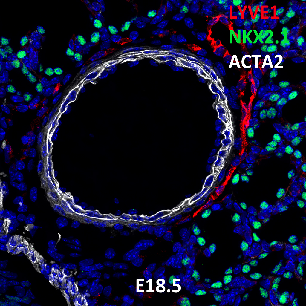 E18.5 Immunofluorescence and Confocal Imaging Showing Expression of LYVE1, NKX2.1, and ACTA2