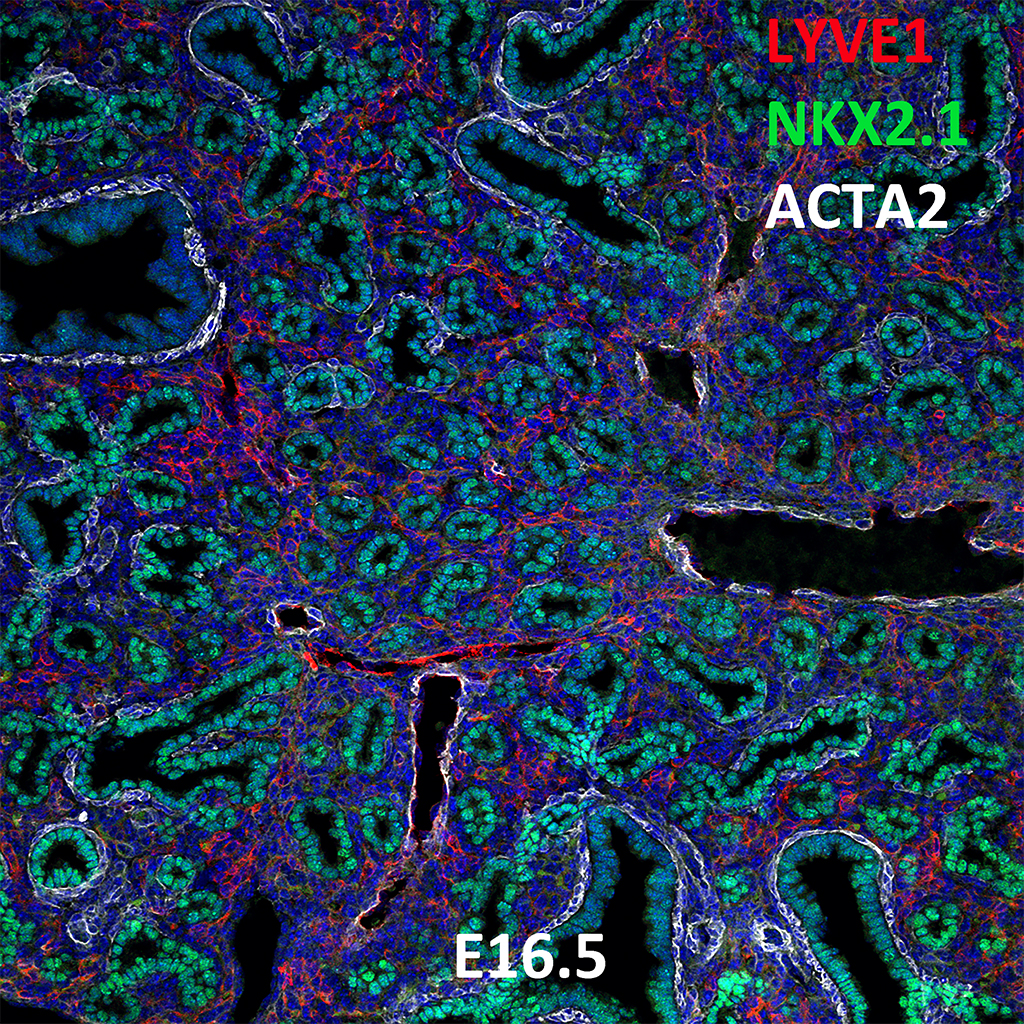 E16.5 Immunofluorescence and Confocal Imaging Showing Expression of LYVE1, NKX2.1, and ACTA2