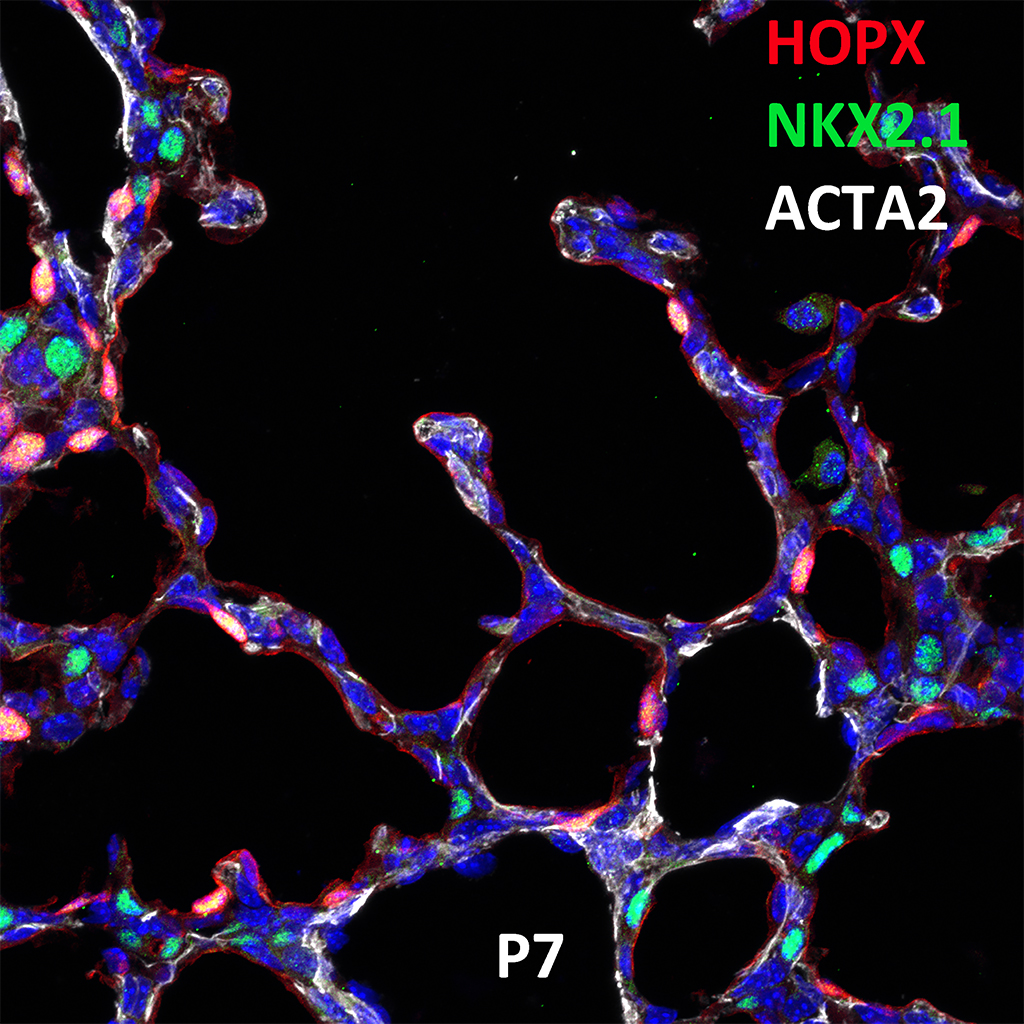 Post Natal Day 7 Immunofluorescence and Confocal Imaging Showing  Expression of HOPX, NKX2.1, and ACTA2