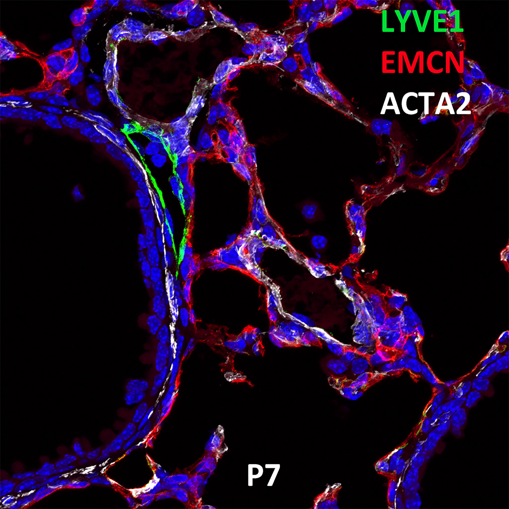 Post Natal Day 7 Immunofluorescence and Confocal Imaging Showing Expression of LYVE1, EMCN, and ACTA2