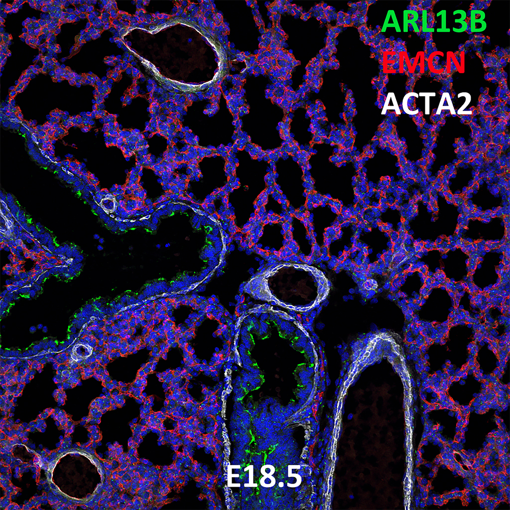 E18.5 Immunofluorescence and Confocal Imaging Showing Expression of ARL13B, EMCN, and ACTA2