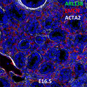 E16.5 C57BL6 ARL13B, EMCN, and ACTA2 Confocal Imaging
