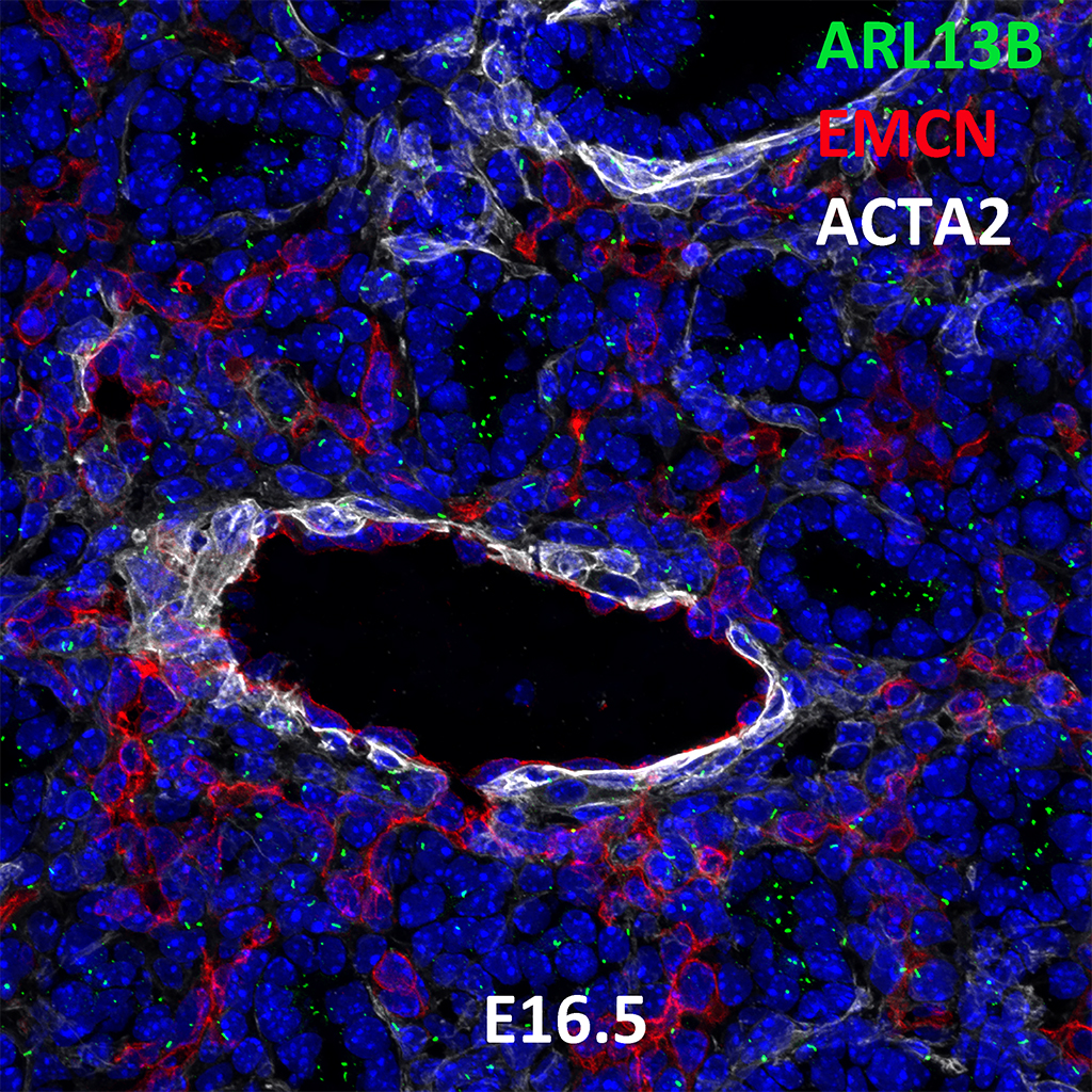 E16.5 Immunofluorescence and Confocal Imaging Showing Expression of ARL13B, EMCN, and ACTA2