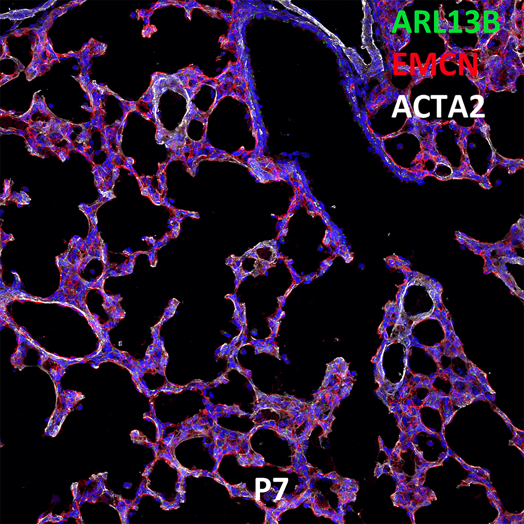 Post Natal Day 7 Immunofluorescence and Confocal Imaging Showing Expression of ARL13B, EMCN, and ACTA2