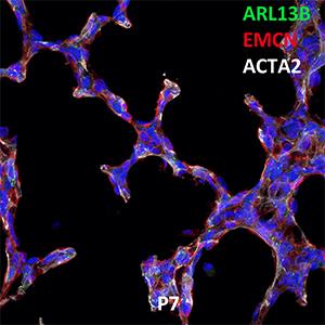 Postnatal Day 7 C57BL6 ARL13B, EMCN, and ACTA2 Confocal Imaging