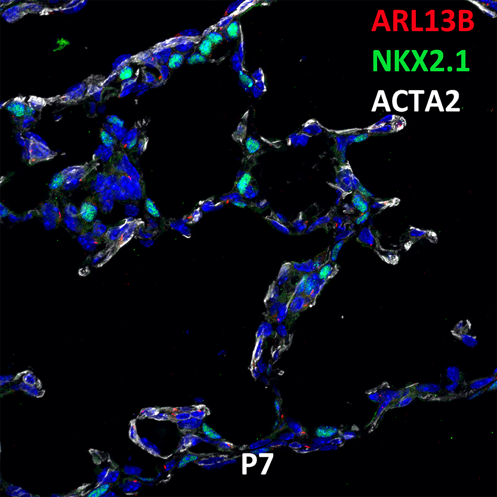 Post Natal Day 7 Immunofluorescence and Confocal Imaging Showing  Expression of ARL13B, NKX2.1, and ACTA2