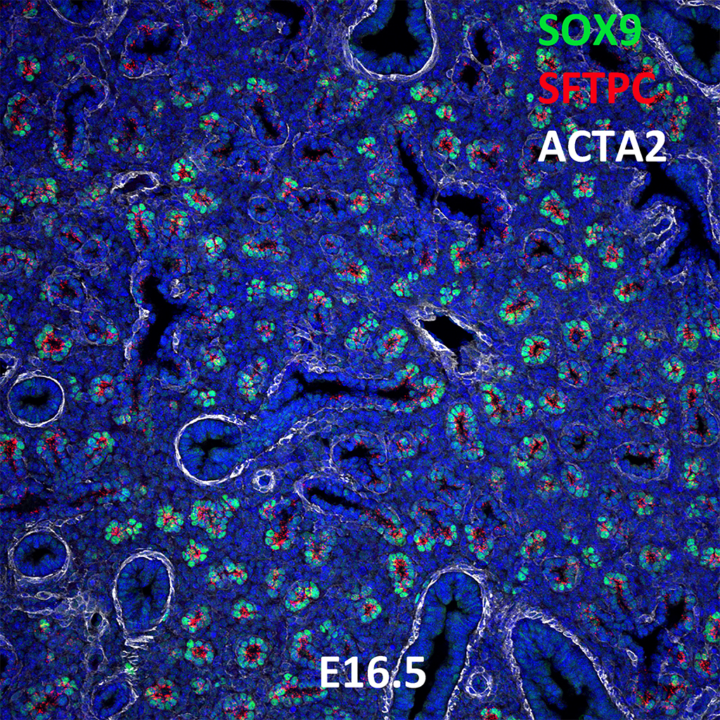 E16.5 Immunofluorescence and Confocal Imaging Showing  Expression of SOX9, NKX2.1, and ACTA2