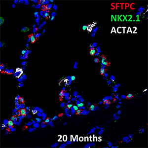20 Month Human SFTPC, NKX2.1, and ACTA2 Confocal Imaging