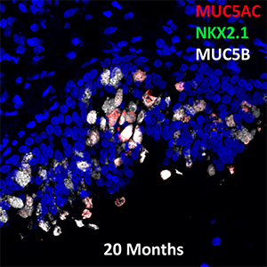20 Month Human MUC5AC, NKX2.1, and MUC5B Confocal Imaging