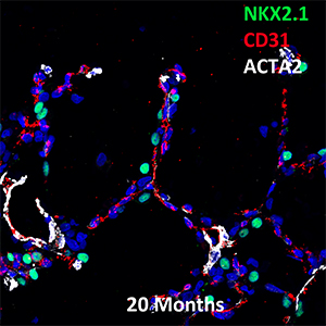20 Month Human NKX2.1, CD31, and ACTA2 Confocal Imaging