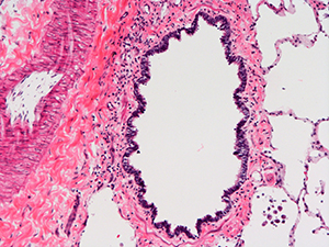 H&E Staining 31 Year Old Human Lung DD034L-03HF-1