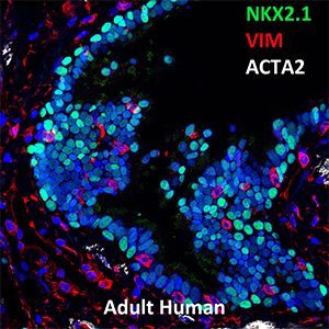 31 Year Old Human NKX2.1, VIM, and ACTA2 Confocal Imaging