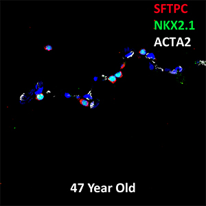 Human Lung  SFTPC, NKX2.1, and ACTA2 Confocal Imaging