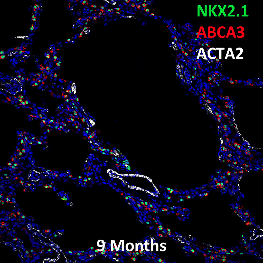 9 Month Old Human Lung Immunofluorescence and Confocal Imaging Showing  Expression of  NKX2.1, ABCA3, ACTA2