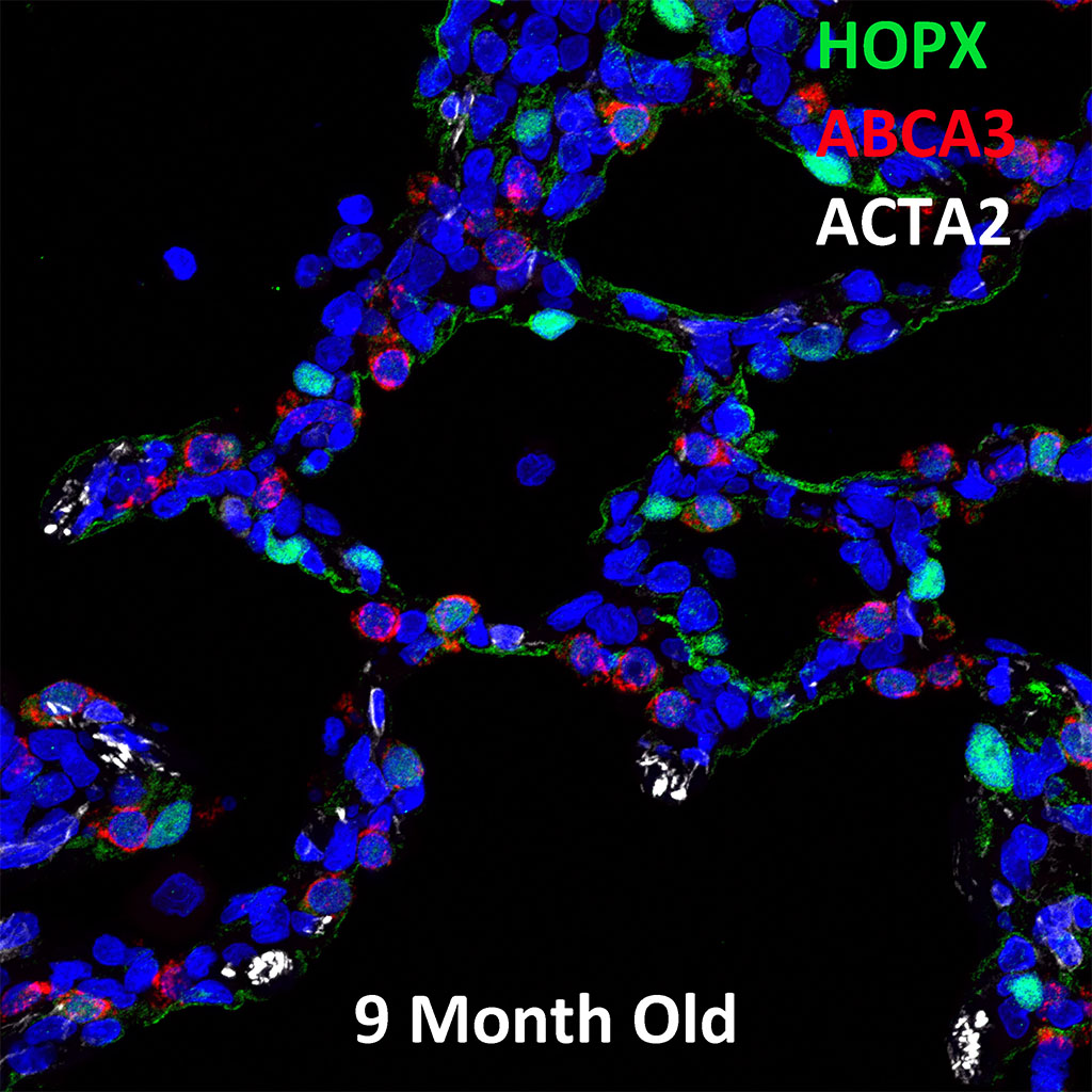 9 Month Old Human Lung Immunofluorescence and Confocal Imaging Showing  Expression of  HOPX, ABCA3, ACTA2