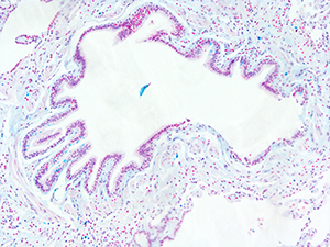 Alcian Blue Staining of 62 Year Old Human Lung DD032L-02HP-8