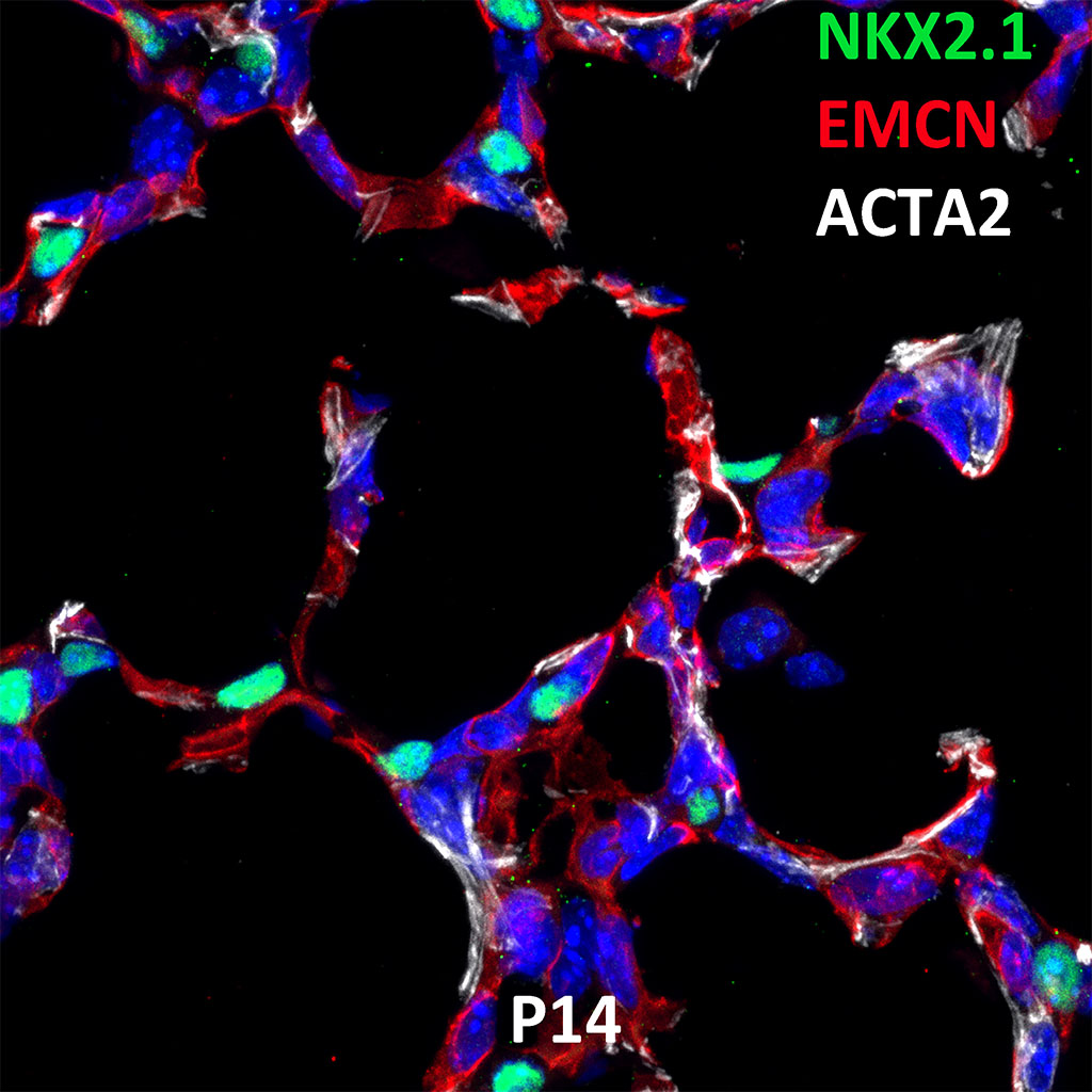Post Natal Day 14 Confocal Imaging Showing Protein Expression of Nkx2.1, Emcn, and Acta2 Genes