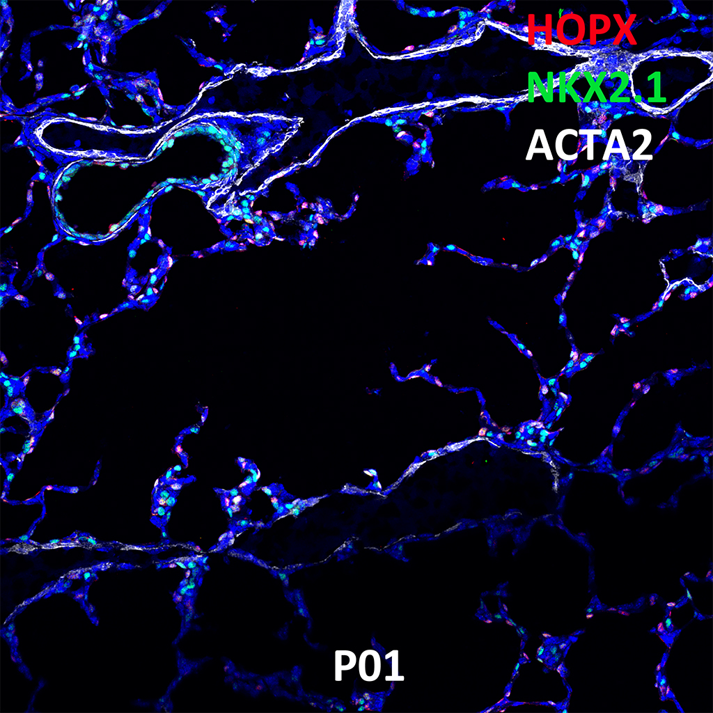 Post Natal Day 1 Confocal Imaging Showing Protein Expression of Hopx, Nkx2.1, and Acta2 Genes