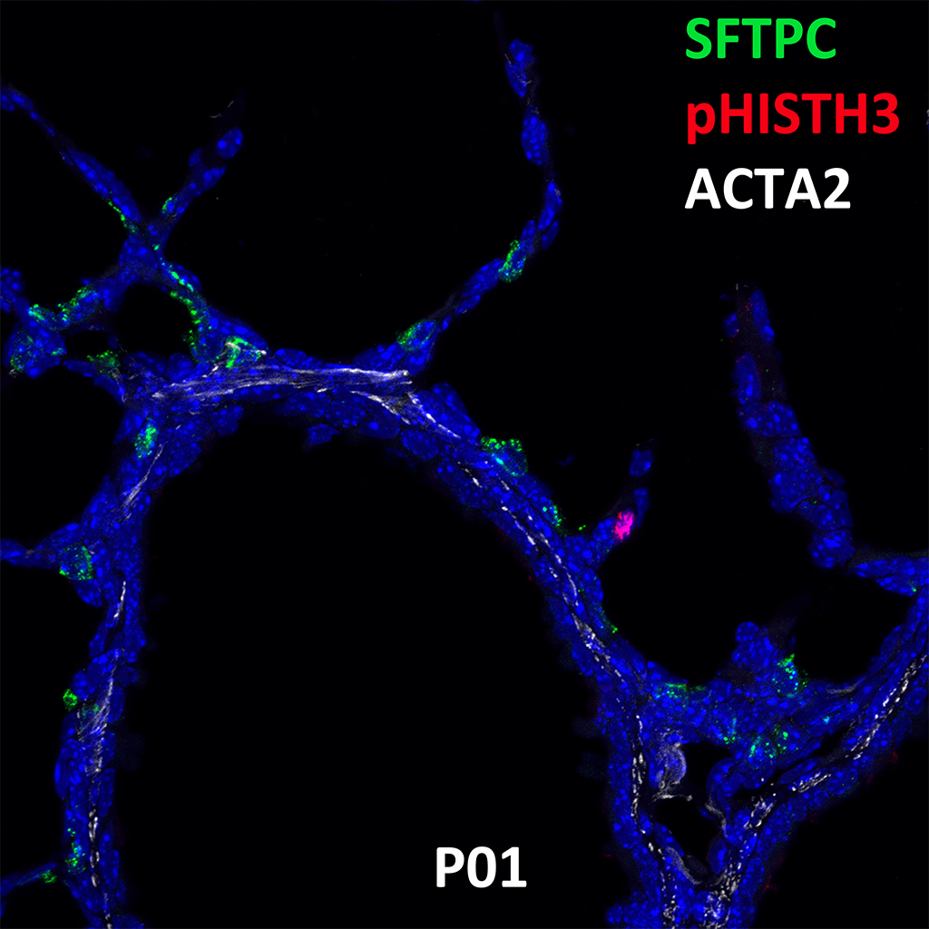 Post Natal Day 1 Confocal Imaging Showing Protein Expression of Sftpc, Phisth3, and Acta2 Genes
